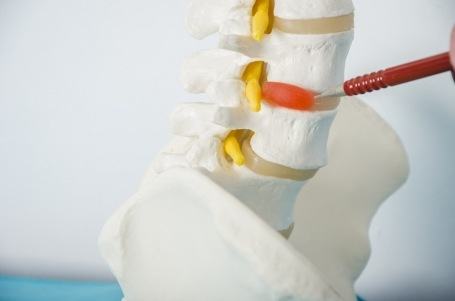WHAT IS A HERNIATED DISC?--