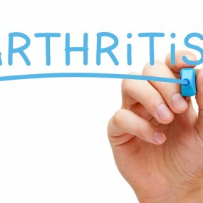 Arthritis treatment image